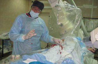 Ведущие кардиологи поделятся опытом лечения острого коронарного синдрома